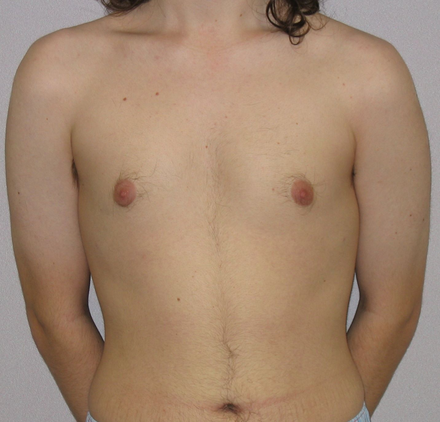postop male breast reduction pic