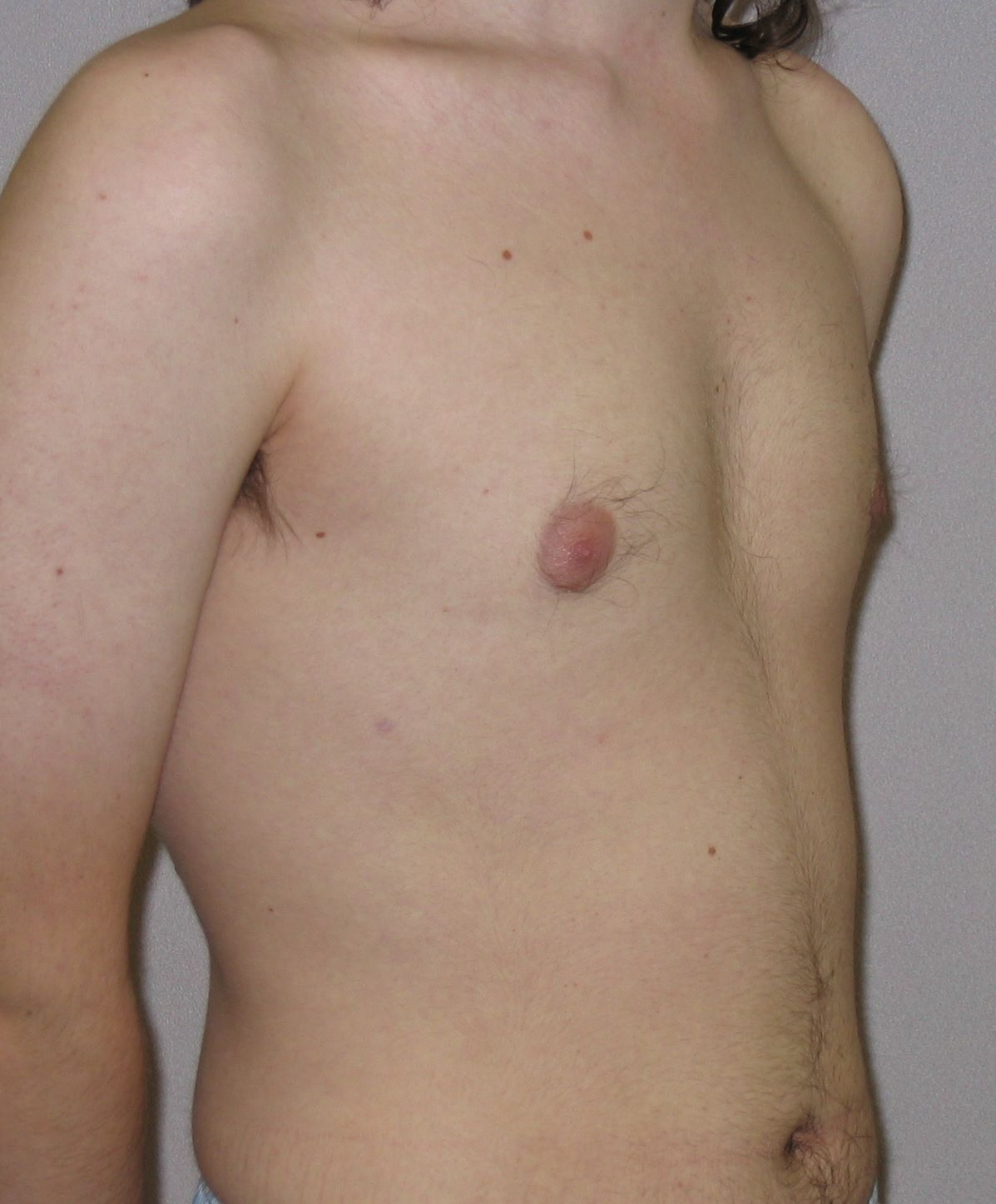 postop male reduction breast pictures