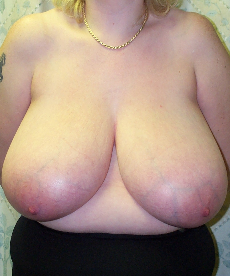 preop breast reduction