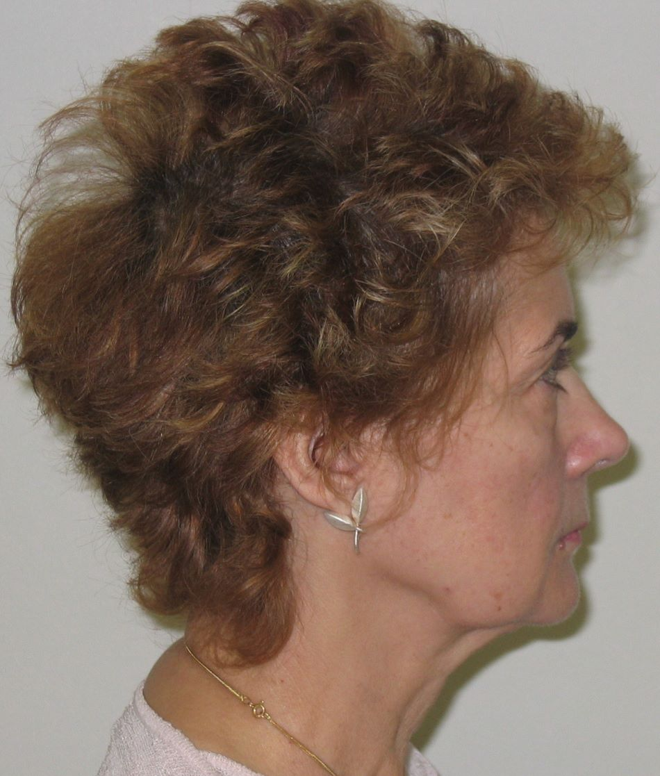 preop facelift